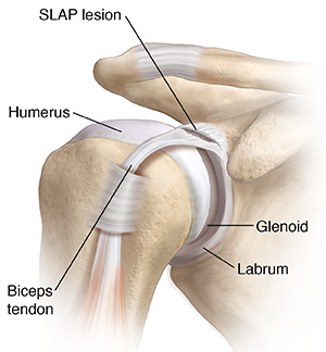 Front view of shoulder joint showing SLAP lesion.